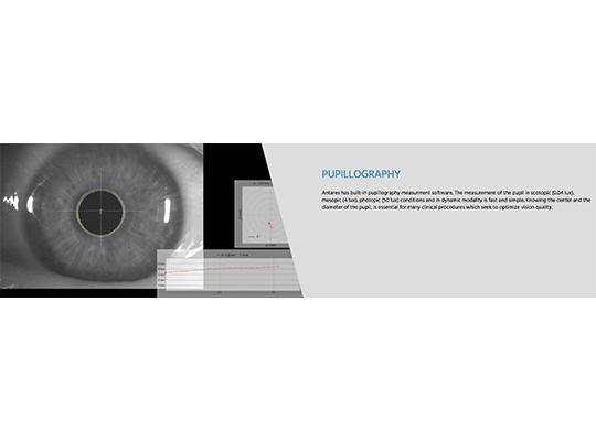 מכשיר אנטריס Antares CSO