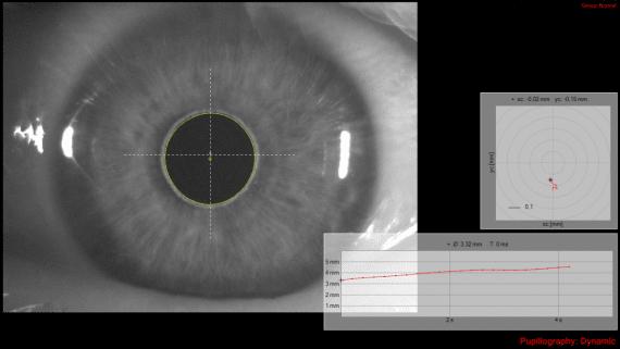 Pupillography