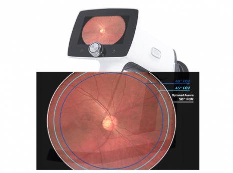 מכשיר נייד פונדוס Optomed Aurora