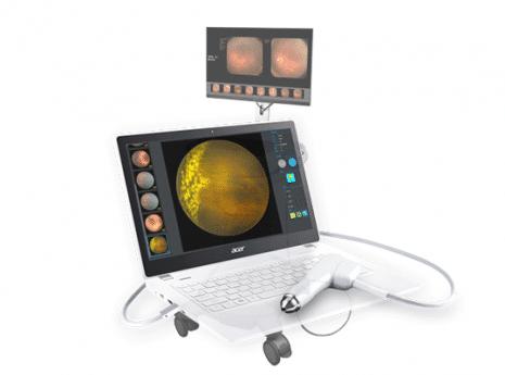 מערכת מתקדמת לצילום הפונדוס SW-8000